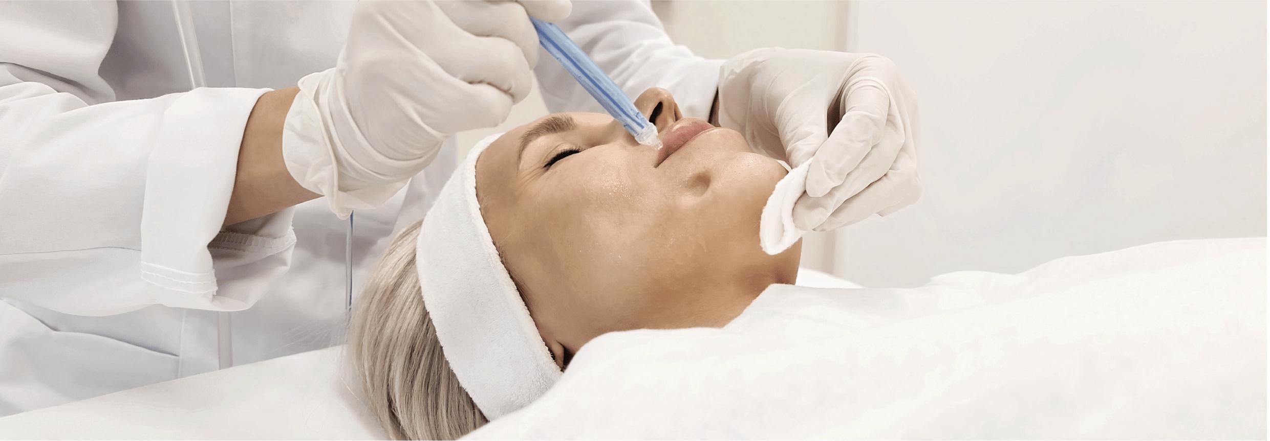 JETPEEL – veido odos procedūra, skirta odai linkusiai į seborėjinį dermatitą